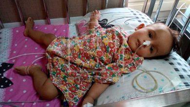 """صورة وزيرة الصحة: الرئيس يوجه بسرعة علاج الطفلة """"روميساء"""" على نفقة التأمين الصحي"""